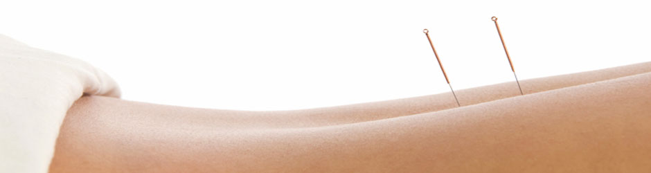 acupuncture-back-banner