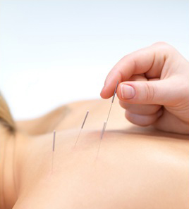 Acupuncture 101: A Few FAQ's